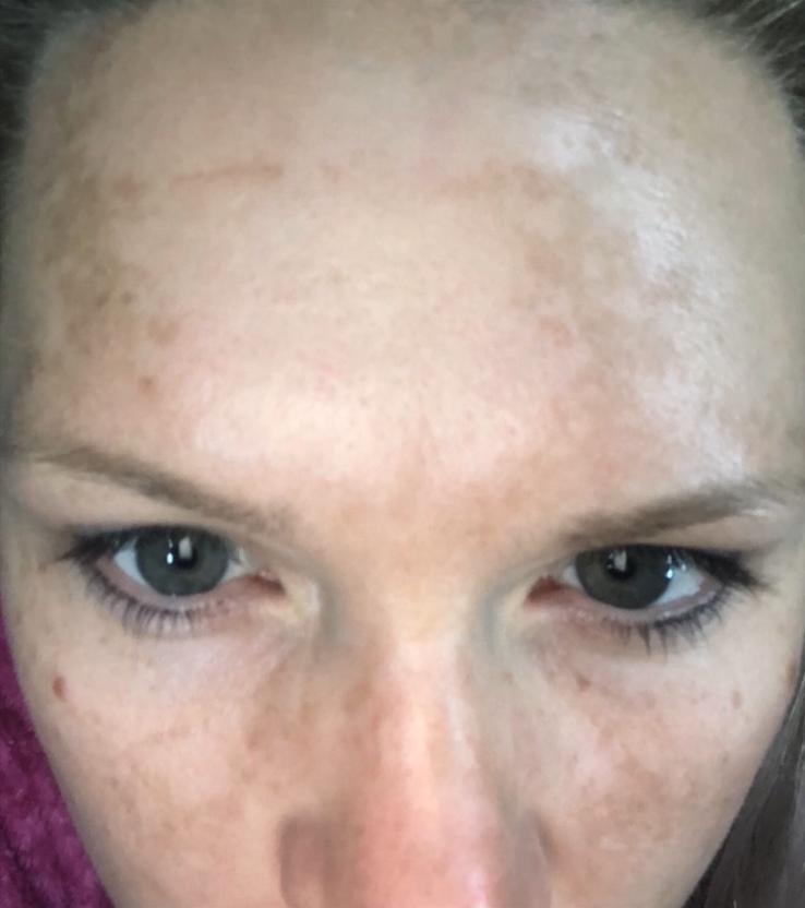 Sun Tanning Can Cause Sun Spots
